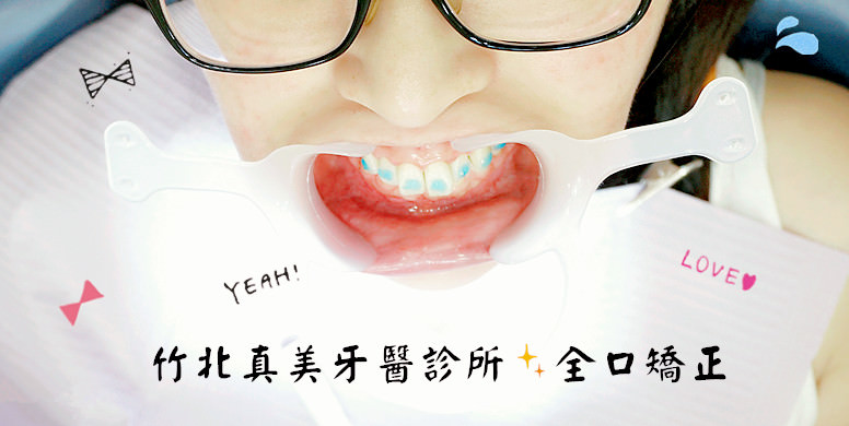 竹北真美牙醫診所 全口矯正