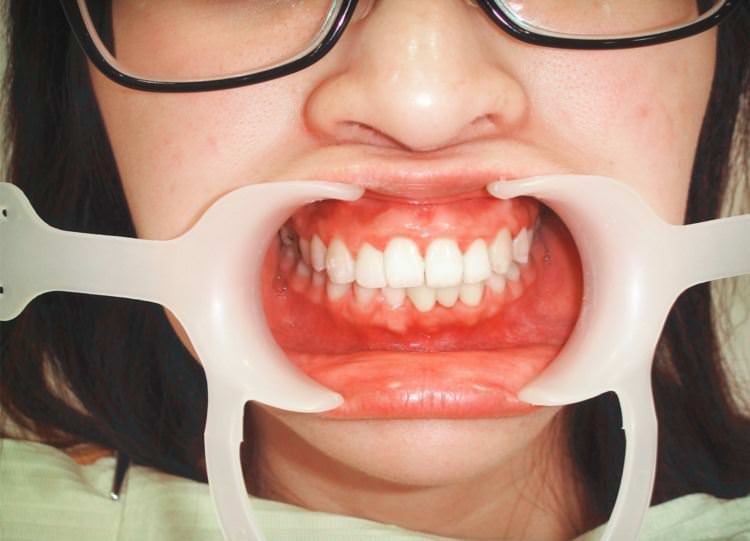 新竹竹北牙醫 | 真美牙醫診所 舒眠植牙中心 人家拆牙套囉 ♥♥♥ 整牙的心歷路程結束 快速矯正器 牙橋 牙套 臼齒墊高 磨牙都掰掰啦 !!!!!